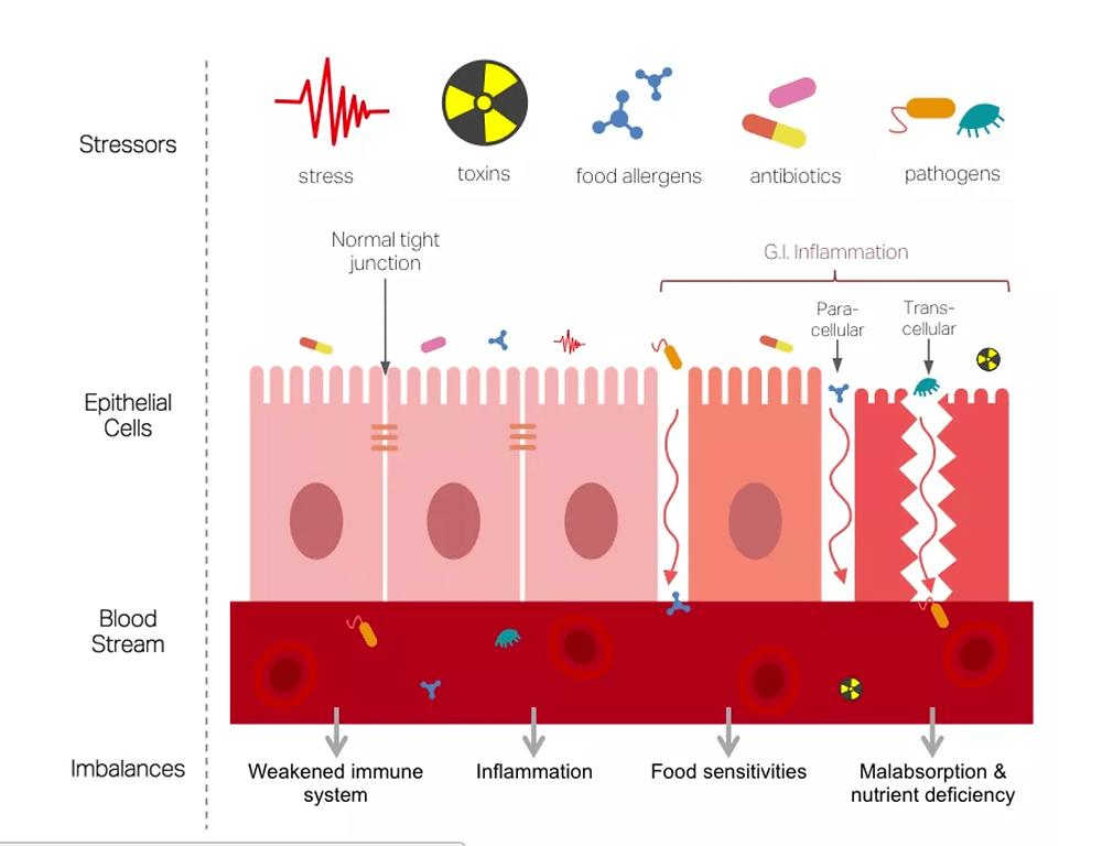 gut dysbiosis leaky gut