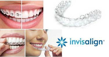 spazio-orofacial-invisalign-ortodontia.j