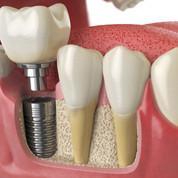spazio-orofacial-Implante-dentario.jpg