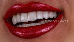 Lentes de Contato Dental - Transforme o seu sorriso!