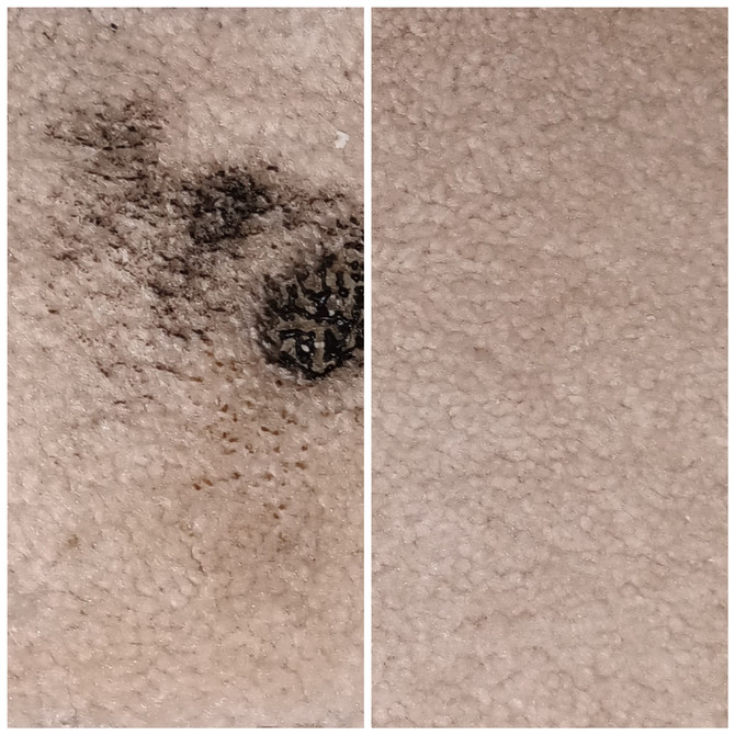 Burn holes in your carpeting? No problem