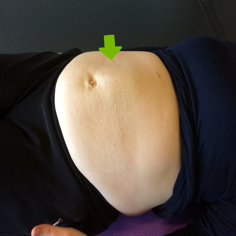 bulging in diastasis test