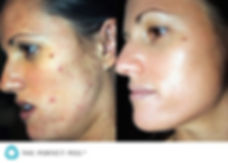 chemical peels treatment hale Altrincham