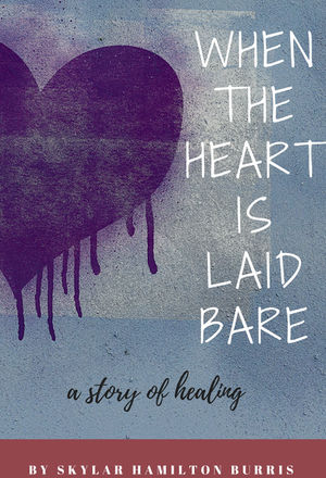 When the Hart Is Laid Bare