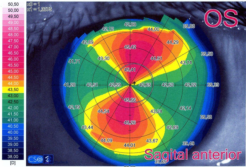 Adaptación de LC astigmatismo alto