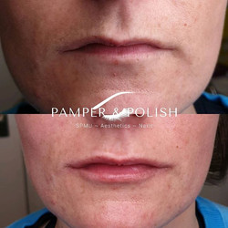 Gorgeous lip filler for this client toda