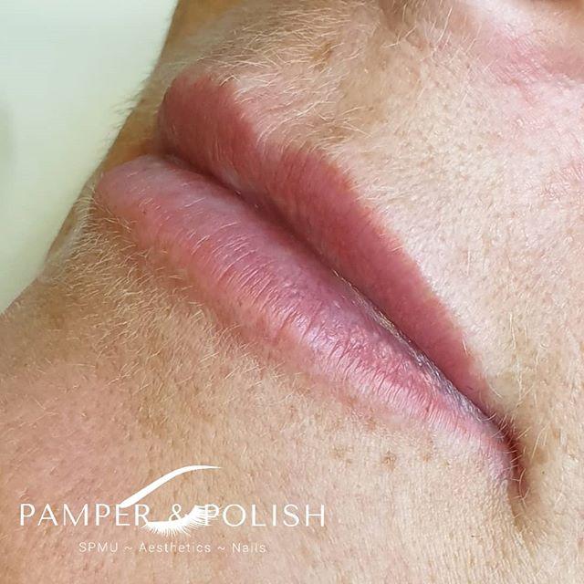 Beautiful and subtle lip enhancement usi