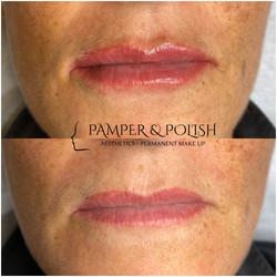 Before & After 0.8ml Lip Filler