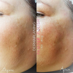 Amazing results from today's Dermaplaning facial. You can see a visible difference in the before and