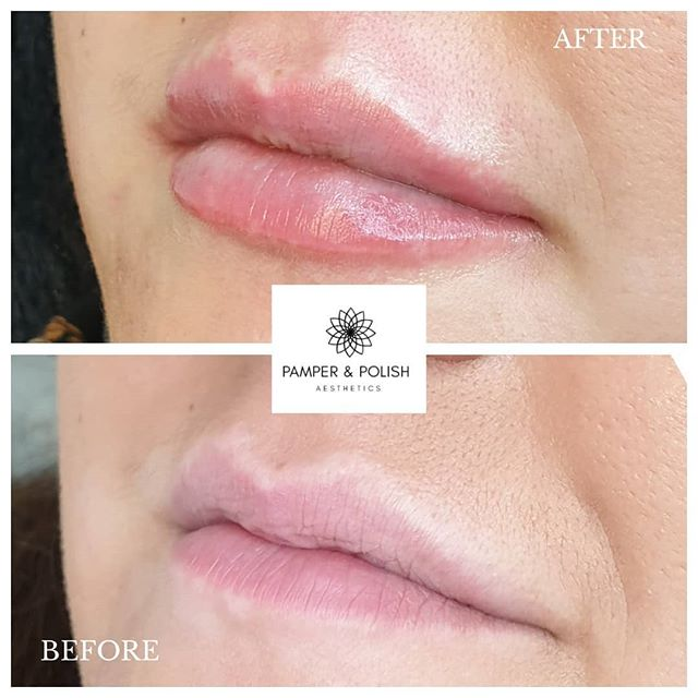 Stunning new lips from today's clinic 💋