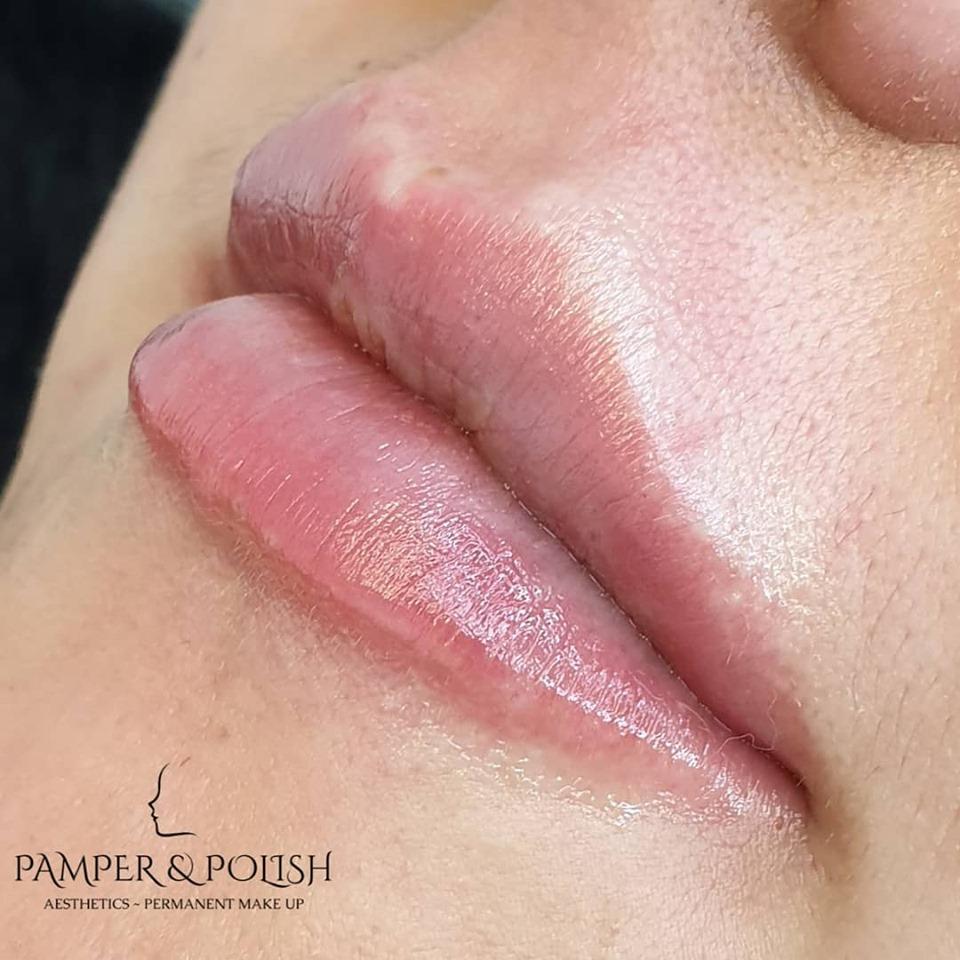 Beautiful 1ml Lip Augmentation