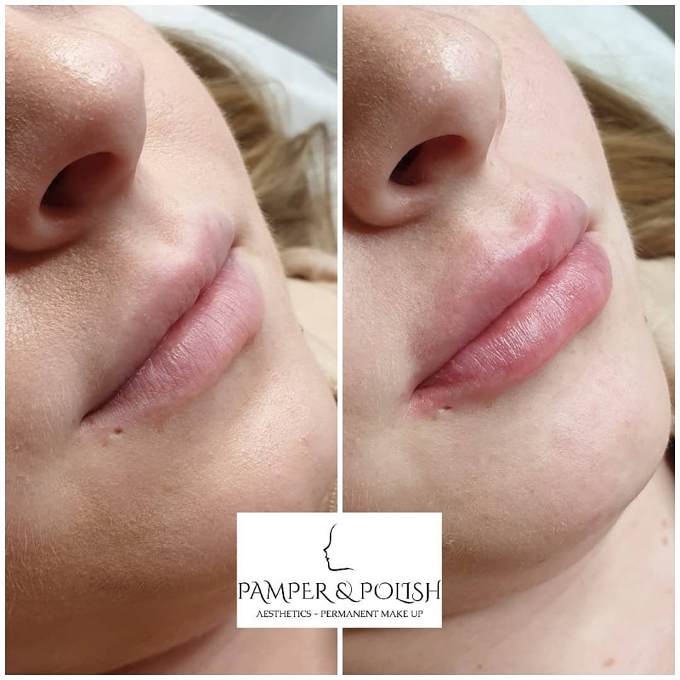 Before & After 1.1ml Augmentation
