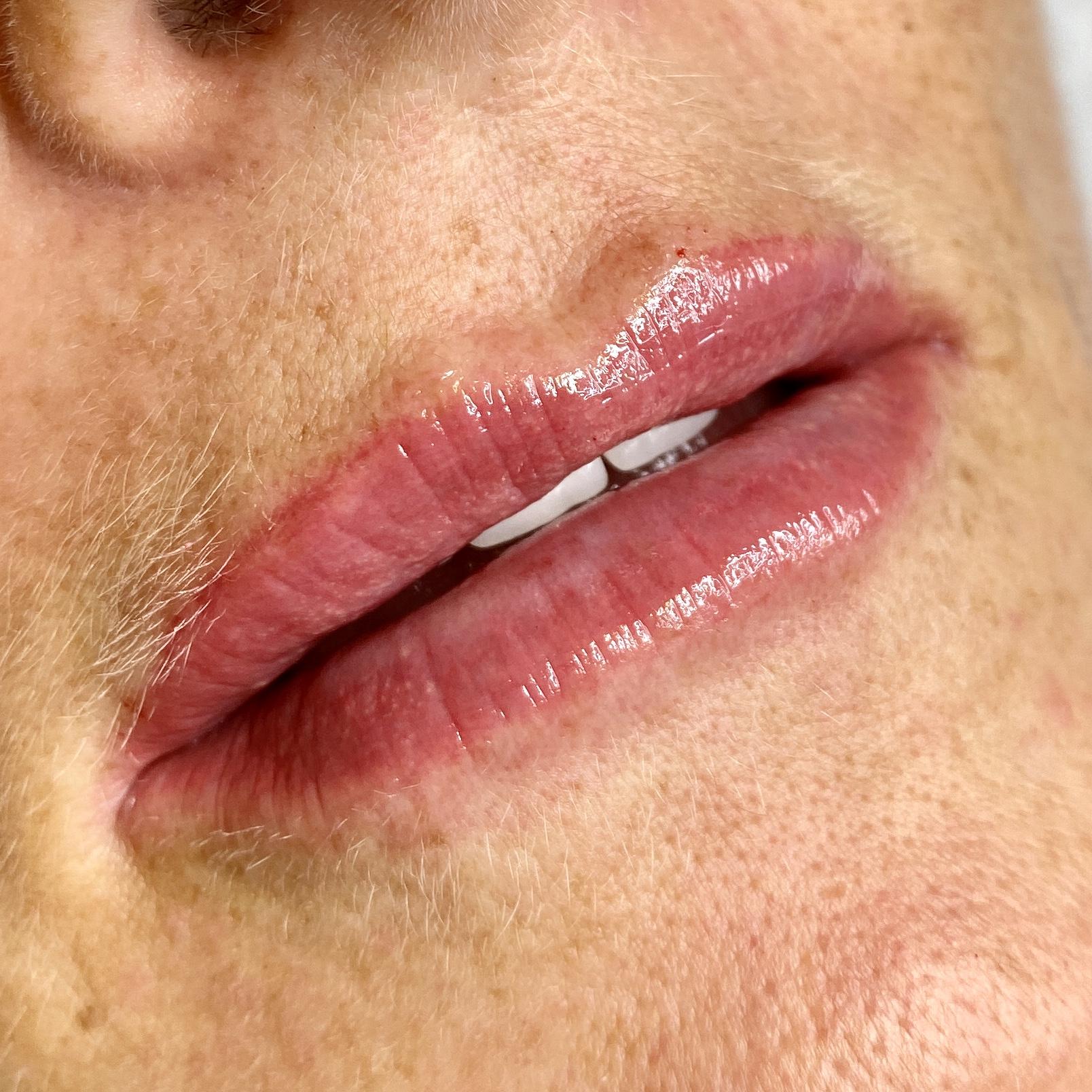 0.8ml Lip Augmentation