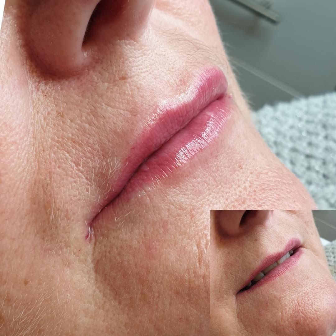 1.1ml Lip Augmentation
