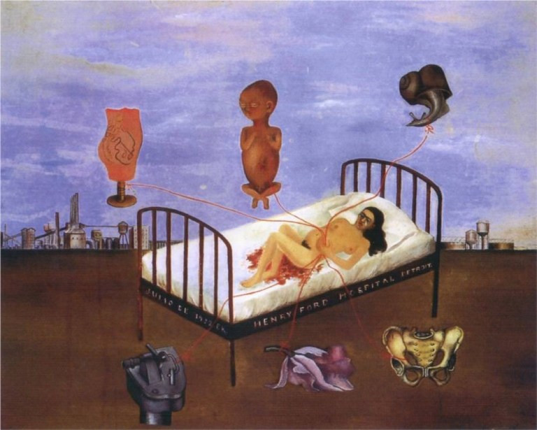 In this painting, Frida depicts herself in Henry Ford Hospital, lying on a bed naked with blood and haemorrhaging.