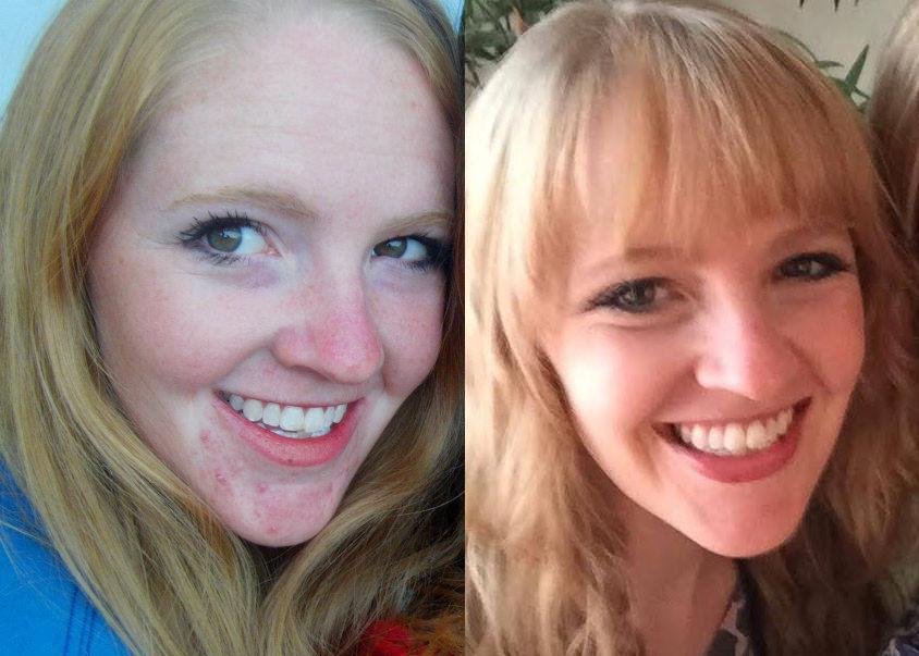Skin before and after addressing internal health concerns