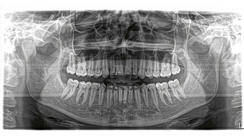 3d-dental-cone-beam-x-ray.png