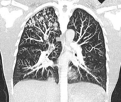 VestAndPage_Tuberculosis_CT_1web.jpg