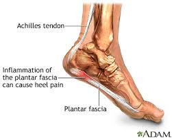 Plantar Fasciitis Treatment using Radial Shockwave Therapy