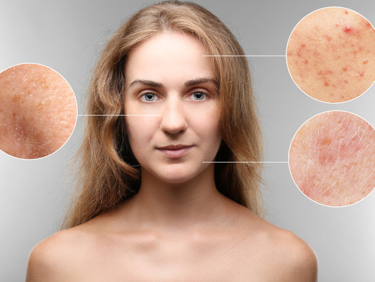 When Acne Is Not Acne