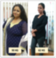 Best-Bariatric-Surgery-Weight-loss-surge