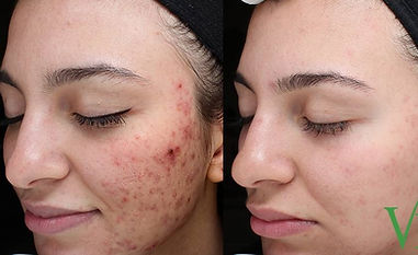 Acne and Acne Scarring.jpg