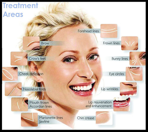 botox-treatment-area_edited.jpg