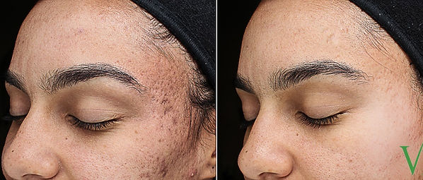 Acne and Acne Scarring - PIH.jpg