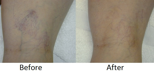 Leg vein before - Copy.jpg