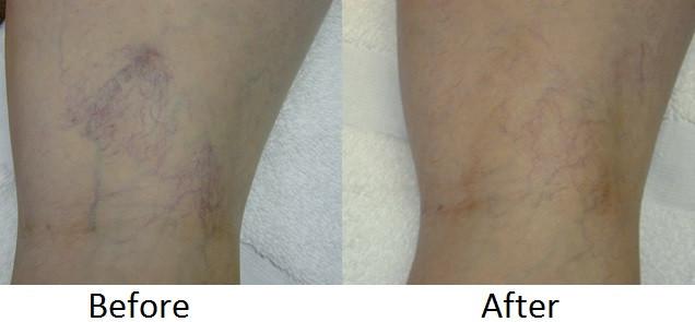 Leg vein before - Copy.jpg