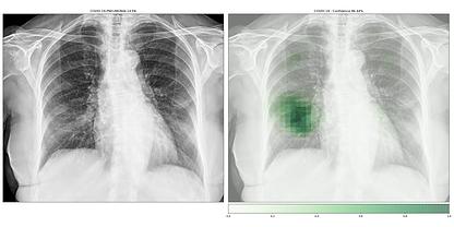 examples_covid-19-pneumonia-14-PA___COVI