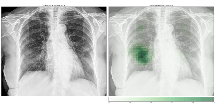 lung disease detection