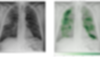 examples_right-upper-lobe-pneumonia-9-PA