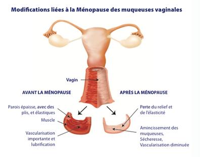 Juvilase, esthétique, laser, réjuvénation, friboug, le mouret, médecine, dermatologie, ménopause, vagin, vaginal, atrophie vaginale, syndrome genito urinaire, secheresse, brulures, irritations, infections urinaires, incontinence, démangeaisons, prurit, douleurs pendant les rapports, dyspareunie, sécheresse vaginale