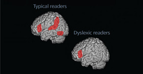 What does dyslexia look like?