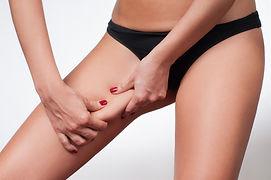 Woman grabbing skin on her leg. Cellulit