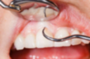 periodonto.jpg