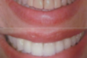 reabilitacao_oral.jpg