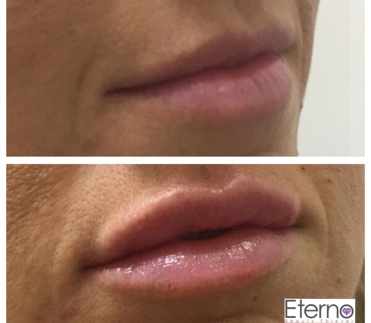 Dermal Fillers at Eterno Skin Clinic in Wolverhampton