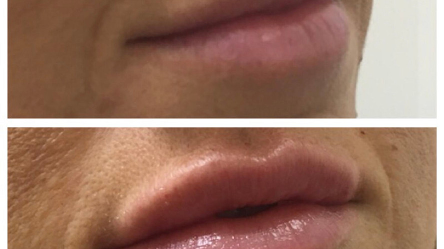 Dermal Fillers at Eterno Skin Clinic in Wolverhampton
