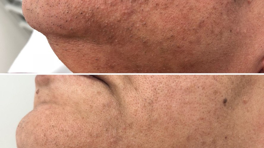 Laser Hair Removal at Eterno