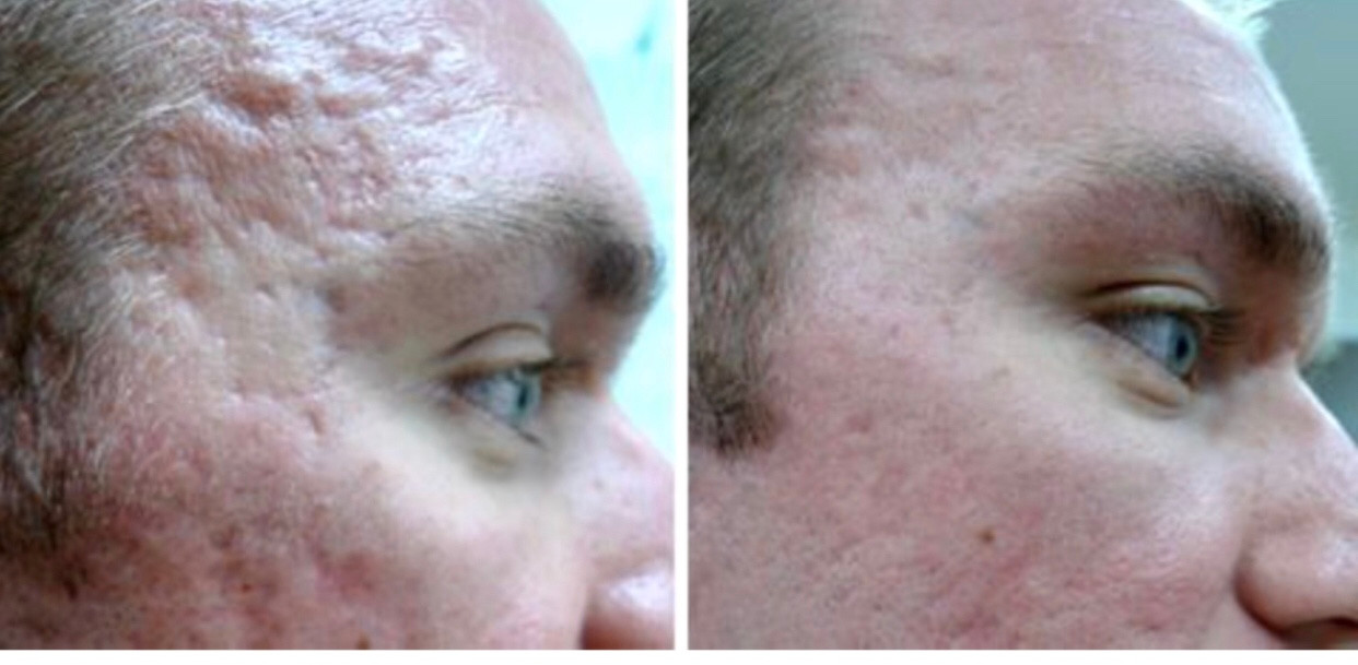 Dermapen scarring results at Eterno