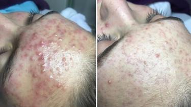 Skin Resurfacer 2.jpg