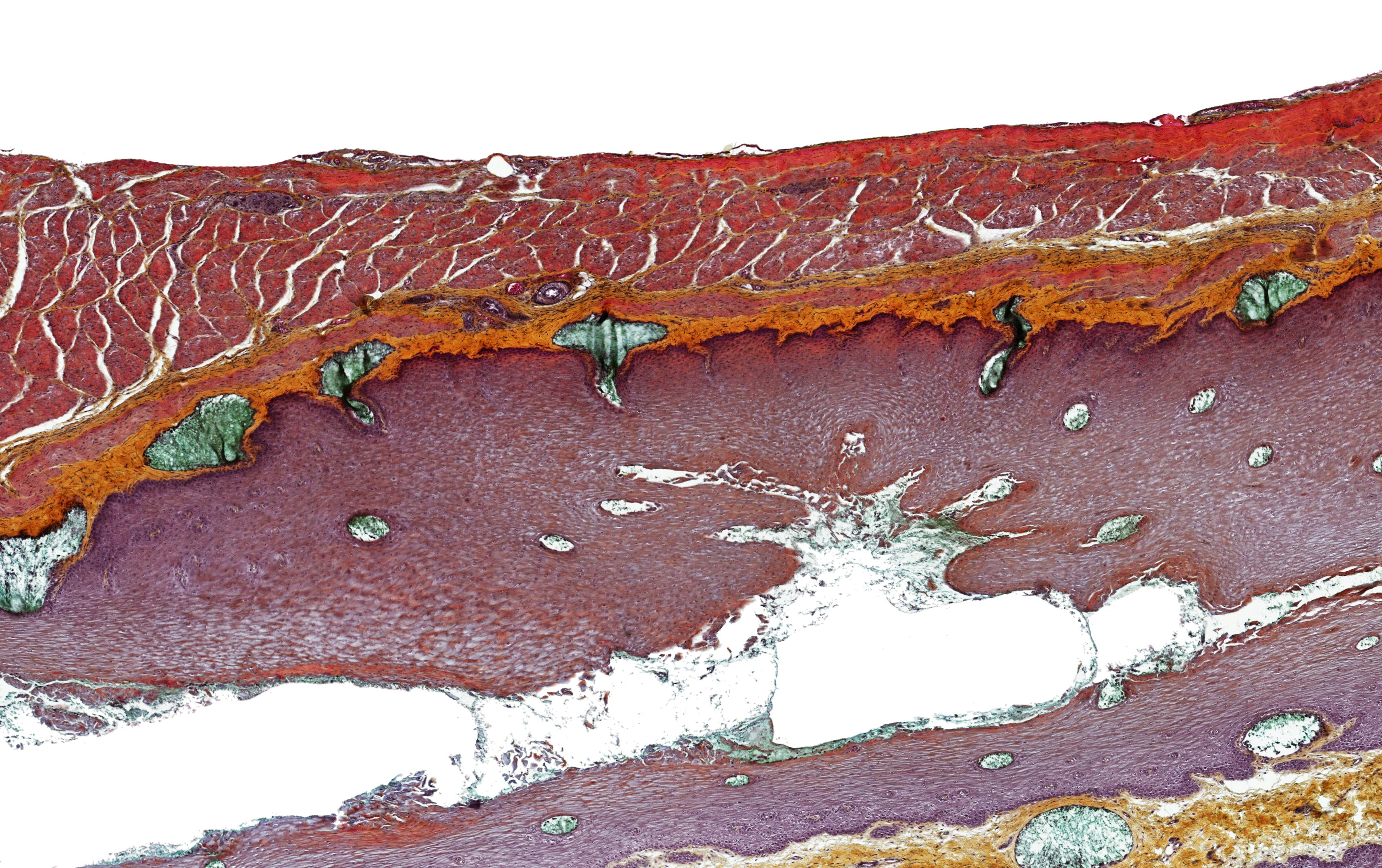 ALTHISIA movat pentachrome 4