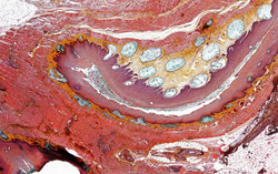 ALTHISIA movat pentachrome 3