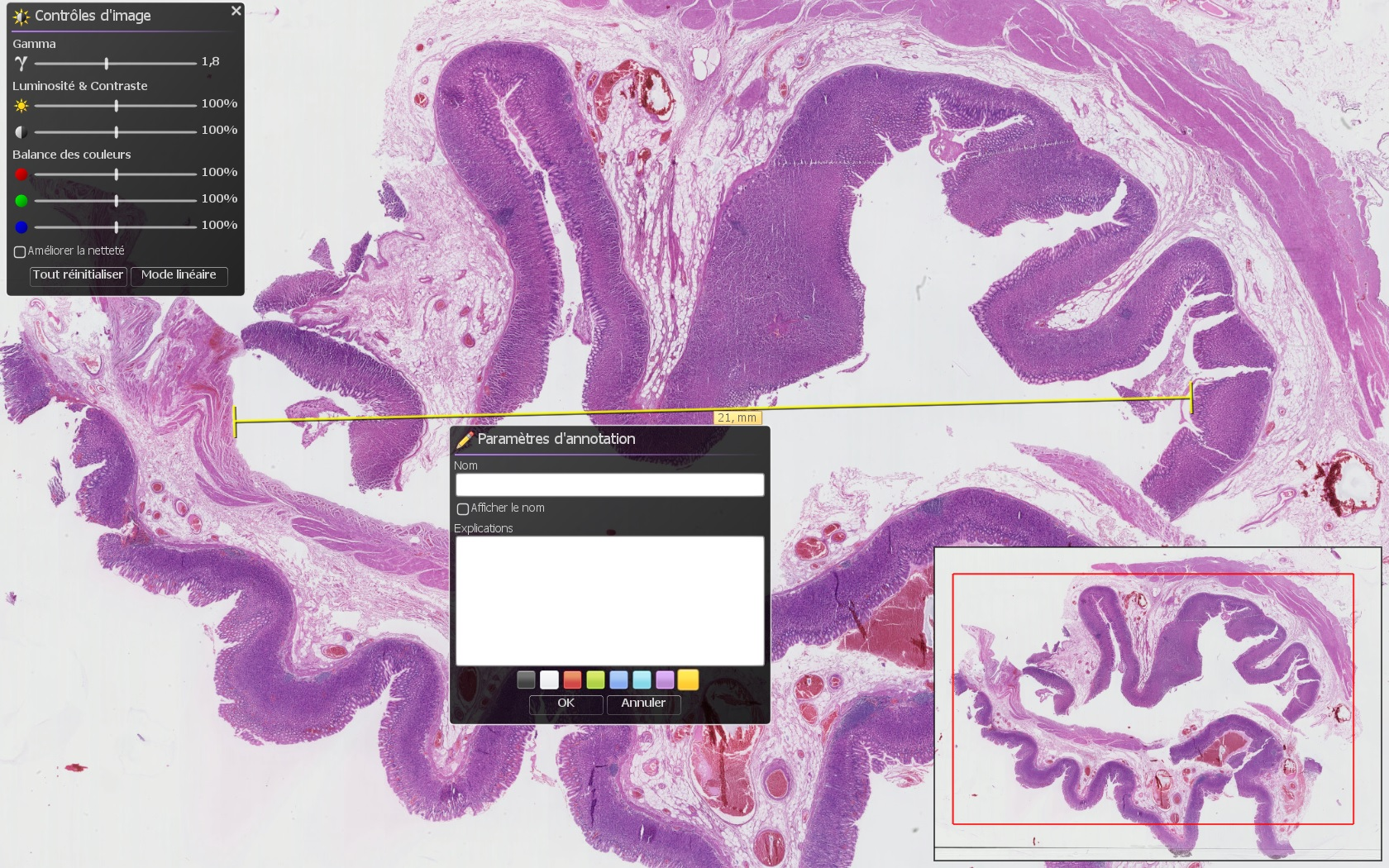 althisia, laboratoire histologie