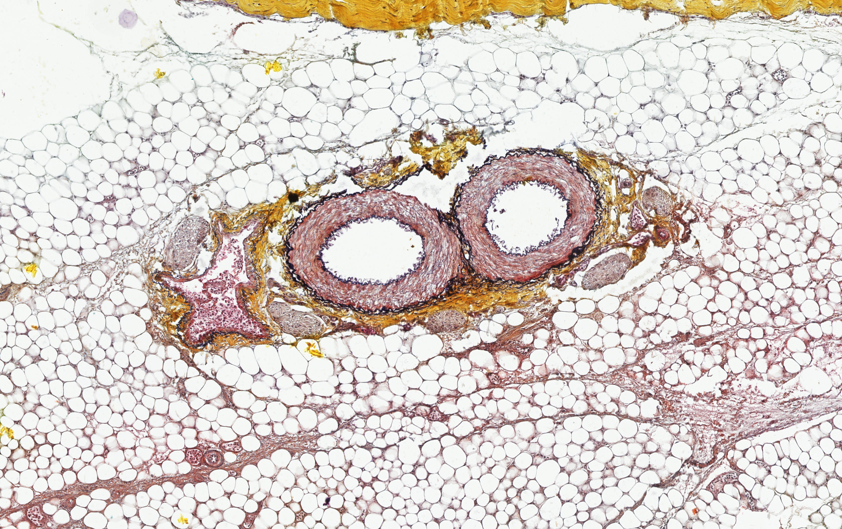 ALTHISIA movat pentachrome 9