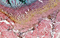 ALTHISIA movat pentachrome 7