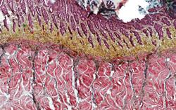 ALTHISIA movat pentachrome 13