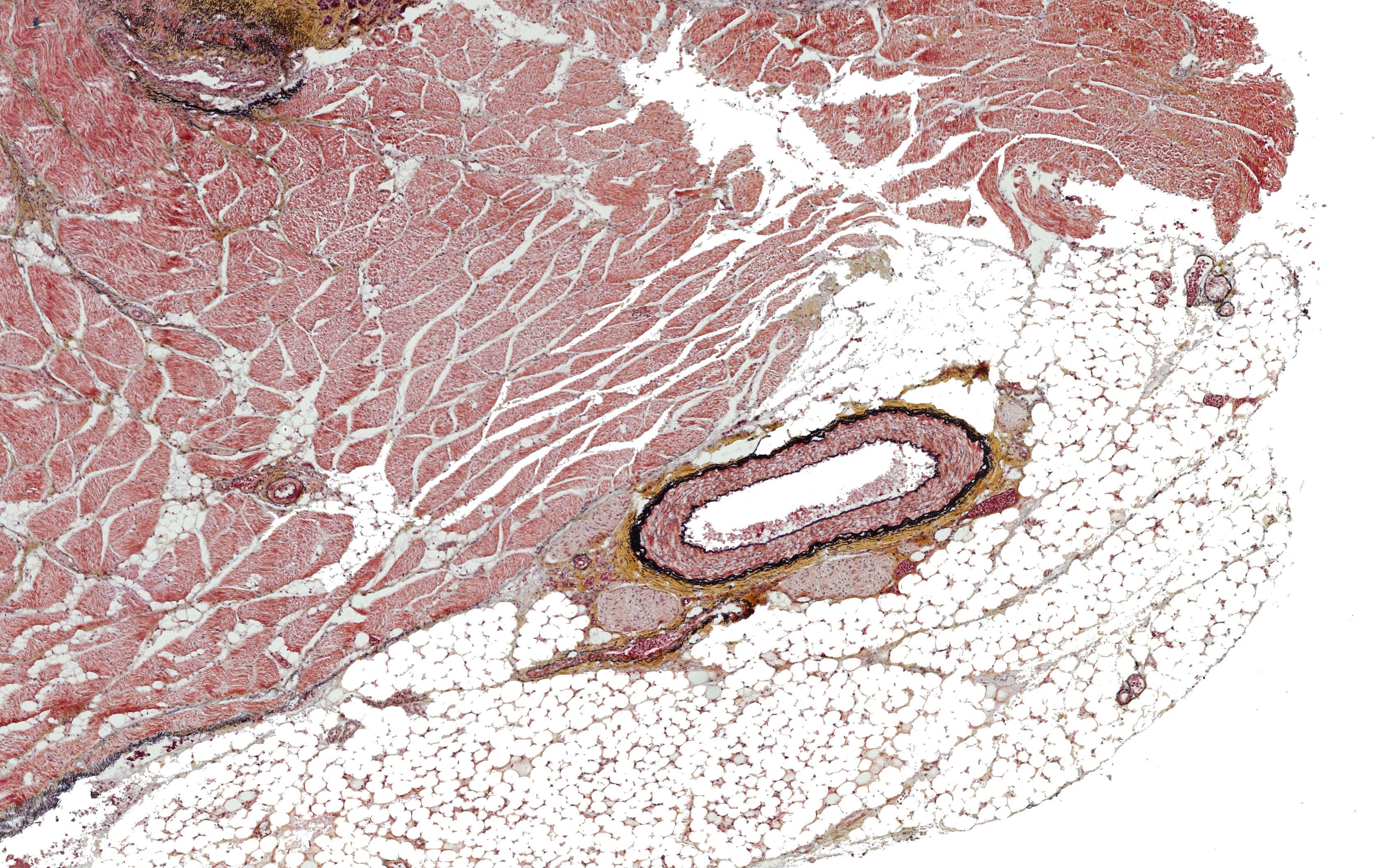 ALTHISIA movat pentachrome 8